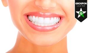Clínica Dental Segura: Limpieza bucal por 12,90 € y con 1 o 2 sesiones de blanqueamiento desde 59,90 €