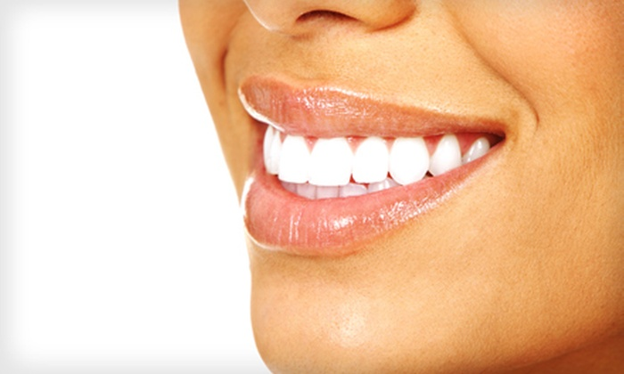 Beaming White Advanced Teeth Whitening - Multiple Locations: $79 for In-Office Gold-Level Laser Teeth-Whitening Treatment at Beaming White Advanced Teeth Whitening ($199 Value)