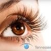 TN Lasik Associates - Knoxville: $1,299 for Custom Interlace Lasik Eye Surgery at Tennessee Lasik Associates