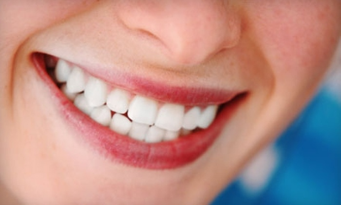 So-Well Dental Associates - Near North Side: $179 for Teeth-Whitening Treatment ($595 Value) or $59 for a Teeth Cleaning, X-Ray, Exam, and Fluoride Treatment (Up to $300 Value) at So-Well Dental Associates