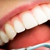 Up to 79% Off Dentistry in High Point