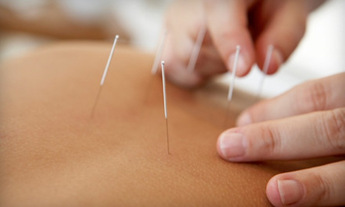 First Choice Chiropractic and Acupuncture - South Omaha: Chiropractic & Acupuncture Sessions at First Choice Chiropractic and Acupuncture (Up to 86% Off)