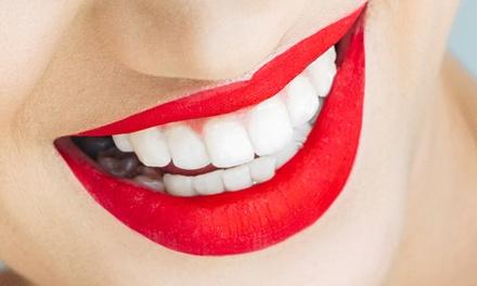 צילום CT לפני טיפול שיניים בכל סניפי רשת CT Dent בפריסה ארצית: צילום לסת ב 350 ₪, או צילום 2 לסתות ב 600 ₪ בלבד!