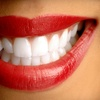 Up to 80% Off Whitening & More in Commerce Township