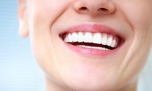 Faycan: Limpieza bucal con revisión por 12,90 € y con 1, 2 o 4 empastes dentales desde 19,90 €