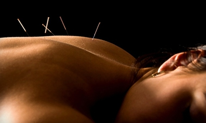 Jolie Crow, DC at Acupuncture Center - Multiple Locations: $40 for an Acupuncture Package from Jolie Crow, DC at Acupuncture Center ($120 Value)