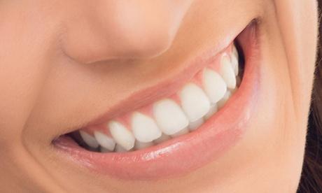 Limpieza bucal con ultrasonidos, pulido, fluorización y 1 blanqueamiento por 49,90 € y con 2 blanqueamientos por 89,90 €
