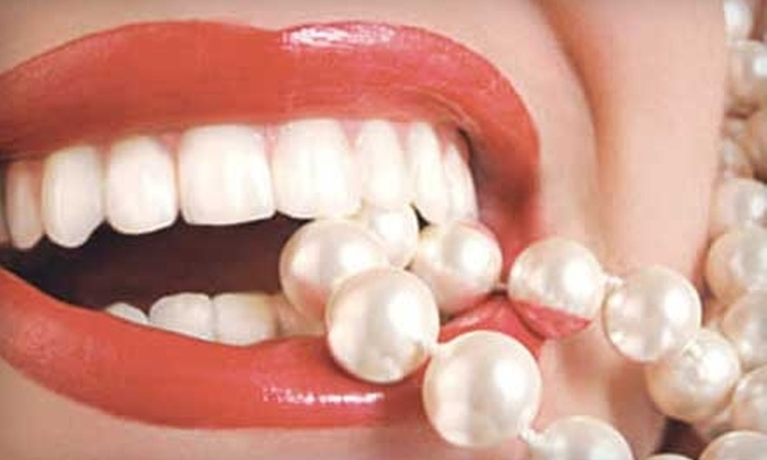 Advanced Dental Concepts - Pace: $99 for Custom Take-Home Teeth-Whitening Trays from Advanced Dental Concepts ($325 Value)
