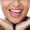 Up to 52% Off Invisalign at Foote Orthodontics