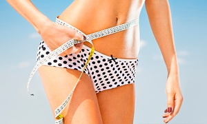 Andrew Nelson Weight Loss Programs: Three Sessions or One Year of Gastric Band Hypnotherapy at Andrew Nelson Weight Loss Programs (Up to 60% Off)