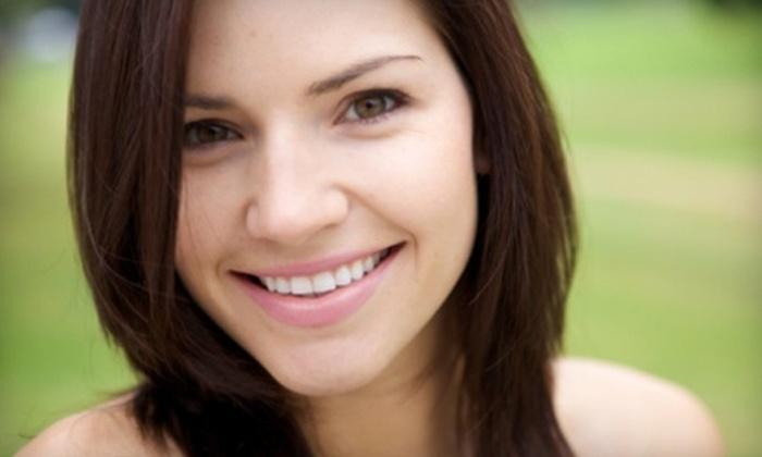 Sonoma Smiles - Napa / Sonoma: $99 for an At-Home Teeth-Whitening Kit at Sonoma Smiles ($394 Value)