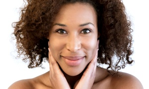 Nu Image Skincare and Wellness: One or Three Deep-Pore Cleansing, After-the-Sun, or Back Facials at Nu Image Skincare and Wellness (Up to 67% Off)