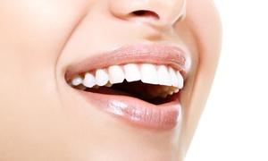 Smile Dent: Skaling, piaskowanie z fluoryzacją za 79,90 zł lub wybielanie zębów lampą Beyond od 299,99 zł w Smile Dent