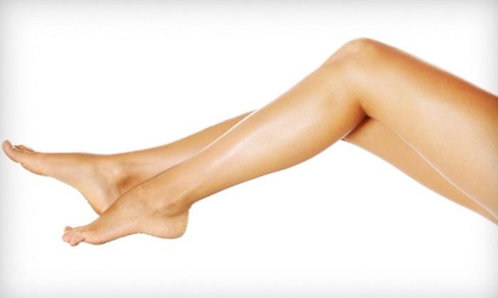 Elite MedSpa - Legacy Center: $389 for Up to Five Laser Spider-Vein Removal Treatments for Both Legs at Elite MedSpa (Up to $895 Value)