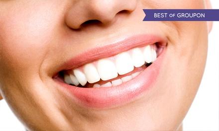 Pulizia denti e sbiancamento led da IAEM