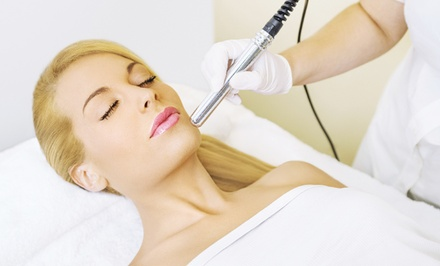 $149 for a Microneedling Session at Jump Jive & Wail Salon and MedSpa ($300 Value)