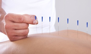South Baylo Clinic: One, Three, or Five Acupuncture Sessions at South Baylo University Virginia Campus Clinic (Up to 73% Off)