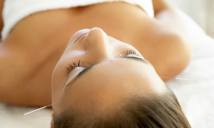 Elite Healthcare - DePaul: One, Three, or Six Acupuncture Treatments at Elite Healthcare (Up to 87% Off)
