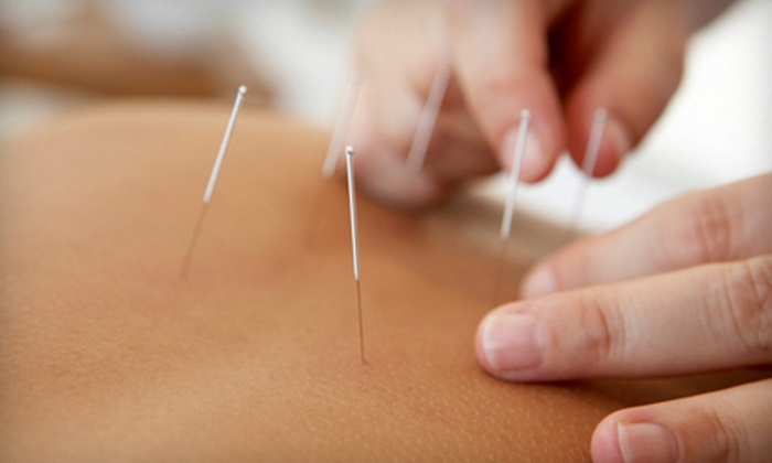 Chinese Acupuncture & Herb Center Minneapolis - Multiple Locations: Acupuncture with Massage or Cupping, or Three Acupuncture Sessions at Chinese Acupuncture & Herb Center (Up to 70% Off)