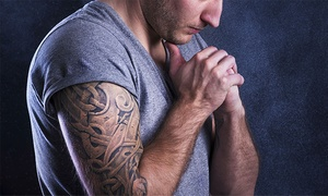 Azahares: 3, 6, 9 o 12 sesiones de láser para eliminar tatuajes desde 79 €