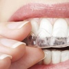 97% Off Invisalign Treatment Package