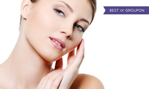 Aura Laser Skin Care: One, Two, or Three IPL FotoFacial Treatments at Aura Laser Skin Care (Up to 80% Off)