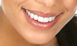 Limpieza bucal por 12,90 € y con 1 o 2 sesiones de blanqueamiento dental LED desde 39,90 €