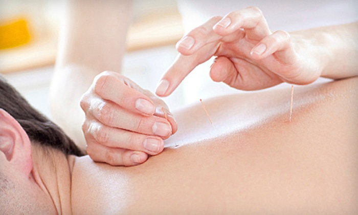 Blue Root Acupuncture - Columbia: One Acupuncture Treatment Package, One Acupuncture Treatment with Consultation, or Tui Na Massage at Blue Root Acupuncture (Up to 71% Off)