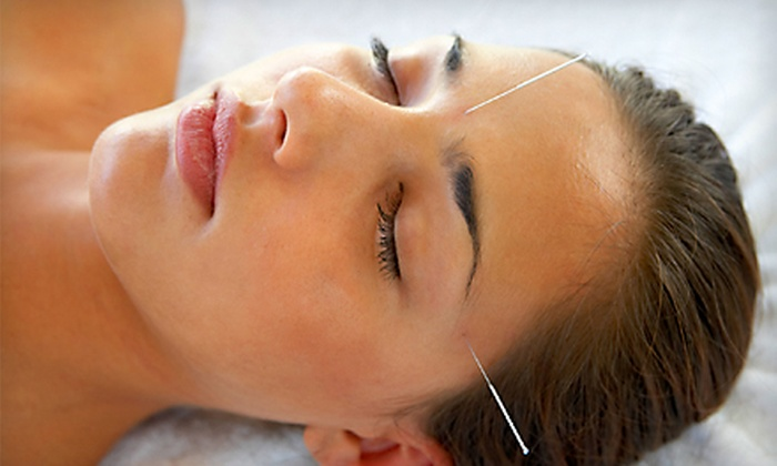 Mera Natural Hair & Body - DePaul: $60 for One-Hour Cosmetic Acupuncture Facial at Mera Natural Hair & Body ($125 Value)