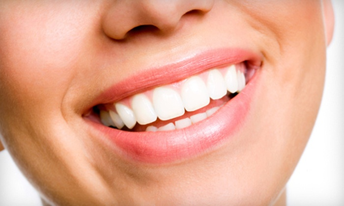 Triangle Family Dentistry - Stephenson Townhomes: Exam, X-rays, and Cleaning or Take-Home Whitening Trays at Triangle Family Dentistry in Fuquay-Varina (Up to 77% Off)