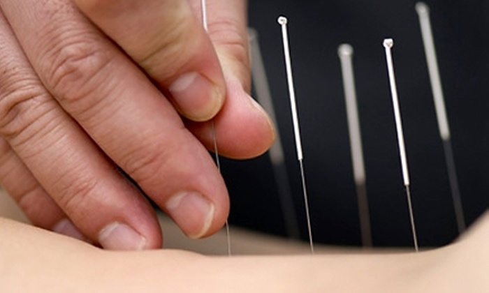 St. Louis Acupuncture Clinic - Chesterfield: $30 for an Acupuncture Session at St. Louis Acupuncture Clinic in Chesterfield ($75 Value)