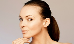 Skin Dynamics by Linda: Two or Four Chemical Peels at Skin Dynamics by Linda (Up to 66% Off)