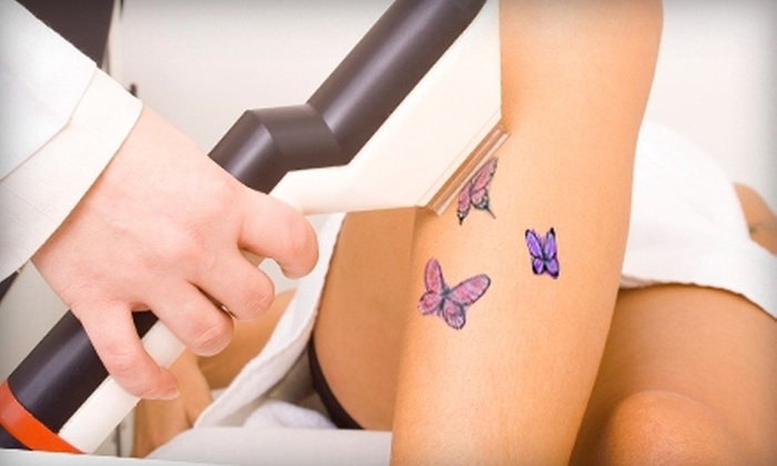 Allure Cosmetic Medicial Center - Orange Park: $99 for One Laser Tattoo-Removal Treatment for Up to 16 sq. in. at Allure Cosmetic Medical Center in Orange Park (Up to $400 Value)