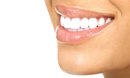 $139 for a Poladay Bright White In-Office Teeth Whitening at Woodside Dental ($899 Value)