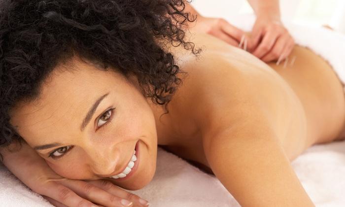 Splendid Massage Spa - Cuesta Park: $29for One Acupuncture Session at Splendid Massage Spa ($130Value)