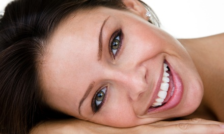 One, Four, Six, or Eight Porcelain Veneers at Family Dentistry (Up to 70% Off)