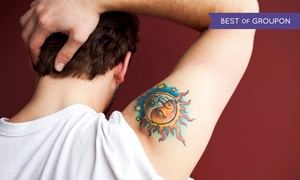 White Pearl Medical Spa: Four Tattoo-Removal Treatments on a Small or Medium Area at White Pearl Medical Spa (Up to 79% Off)