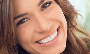 Santa Clara: Limpieza bucal para una persona por 9,90 €, con blanqueamiento por 54,90 € y con kit ambulatorio por 84,90 €