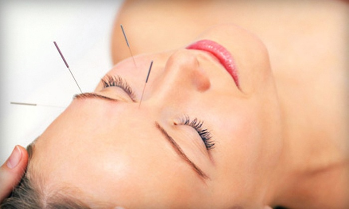 Lily Wu Acupuncture Clinic - Bascom - Forest: One or Three 90-Minute Cosmetic Acupuncture Sessions at Lily Wu Acupuncture Clinic (Up to 76% Off)