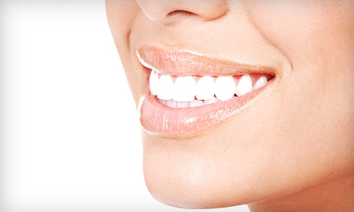Dental Republic - Allen: $1,599 for a Dental Implant with Exam, X-Rays, Abutment, and Crown at Dental Republic in Allen ($4,000 Value)