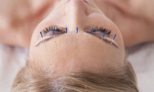 Pin & Tonic: One or Two 1-Hour Acupuncture Sessions at Pin & Tonic LLC (Up to 44% Off)