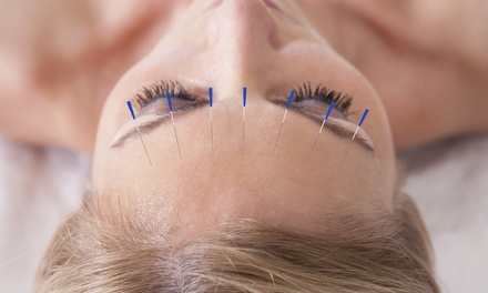 30- or 45-Minute Acupuncture Session at Fab Clinic (Up to 69% Off)