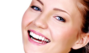 South End Dental Center: Dental Exam with Cleaning and X-ray, or Kör Teeth-Whitening at South End Dental Center (Up to 82% Off)