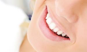 Specjalistyczny Gabinet Urody: Wybielanie zębów metodą PureLite od 79,99 zł w Specjalistycznym Gabinecie Urody