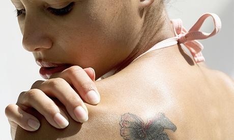 3 o 6 sesiones de eliminación de tatuajes con láser Neodimio Yag desde 69,90 € en Mímate Ya Oferta en Groupon
