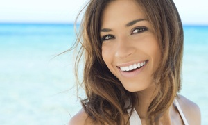 Encinitas Dental Care: One or Two EasySmile LifeLike Veneers from Gary Braunstein DDS (Up to 40% Off)