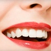 Up to 79% Off Zoom! Teeth Whitening
