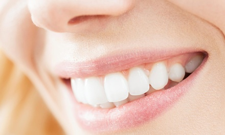 $29 for a Teeth-Whitening Kit at Smile Sciences ($299 Value)