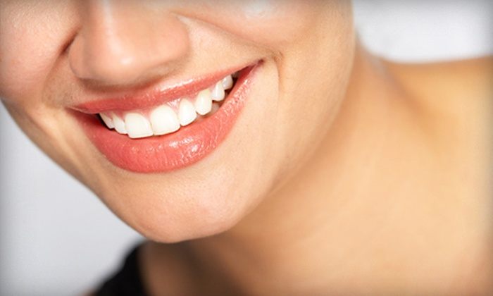 Dazzling White - Fruitport: $39 for a BriteSmile Teeth-Whitening Treatment at Dazzling White in Muskegon ($99 Value)