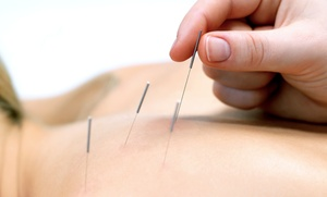Back On Track Chiropractic & Wellness Center: One Acupuncture Treatment at Back On Track Chiropractic & Wellness Center (56% Off)